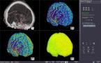 CTボリューム血流解析のキャプチャー画像