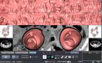 CT大腸解析のキャプチャー画像