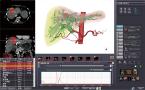 CT肝臓体積測定のキャプチャー画像
